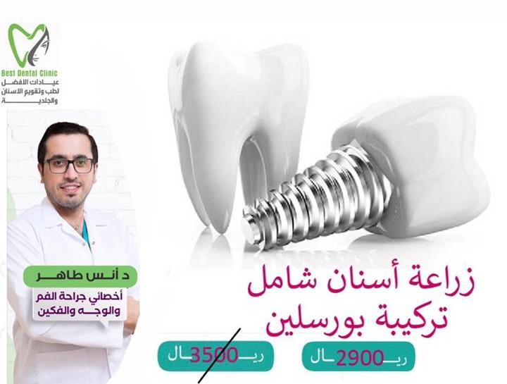 عرض شهر رمضان لزراعة الأسنان
