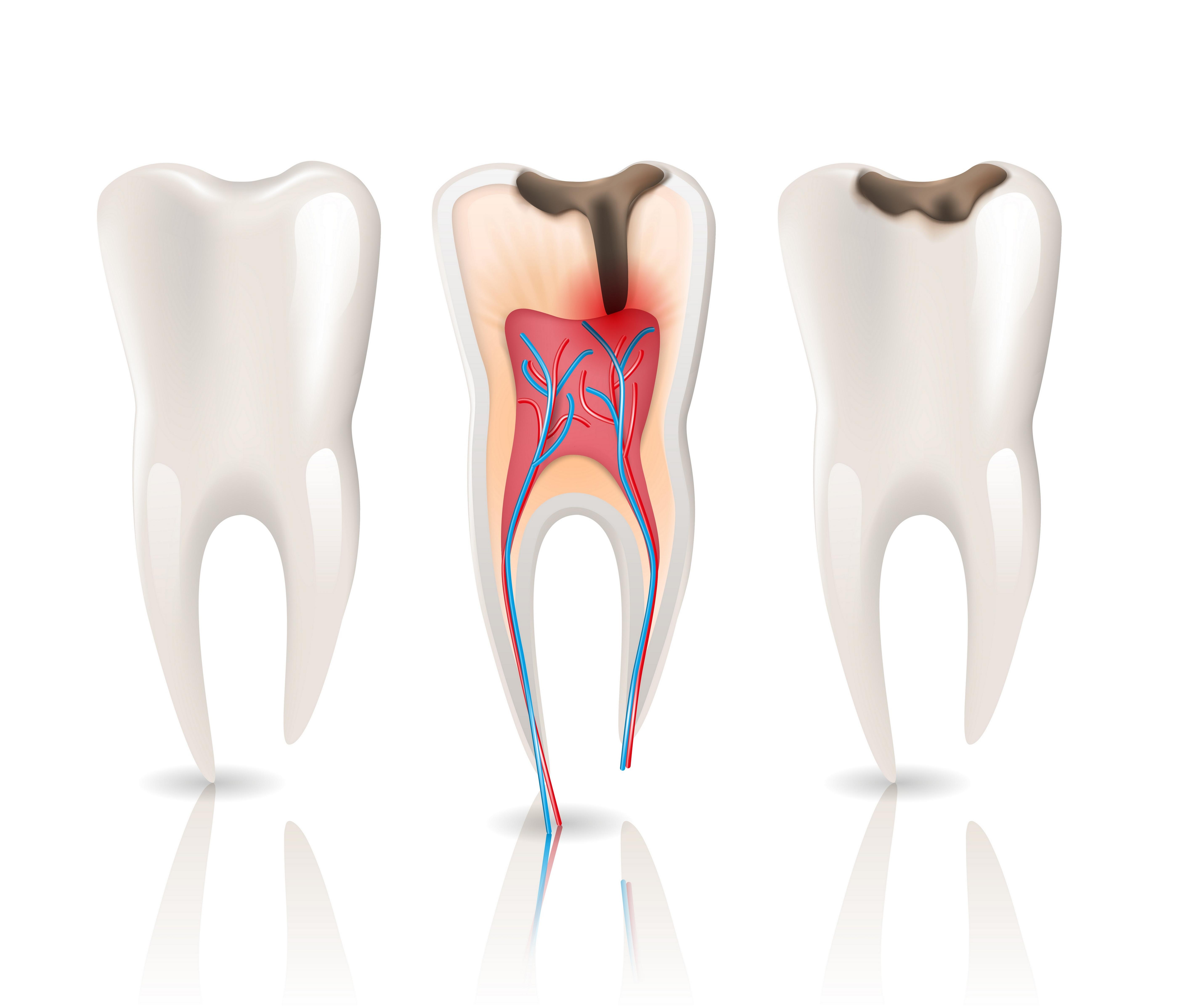 علاج تسوس و عصب الأسنان +حشوة تجميلية