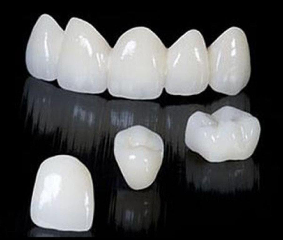 تركيبات اسنان الزركون