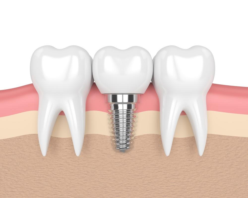 زراعة الأسنان الألمانية شامل التركيبة