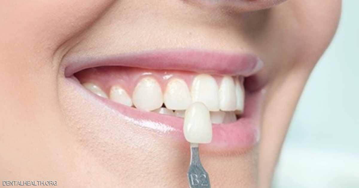 عدسات الأسنان