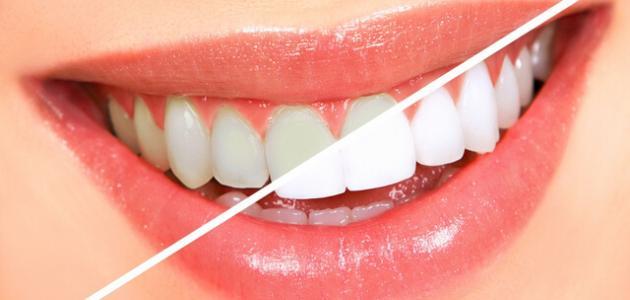 تبييض الأسنان + تنظيف اسنان مجاناً