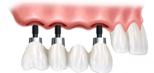 زراعة الأسنان شامل التركيب
