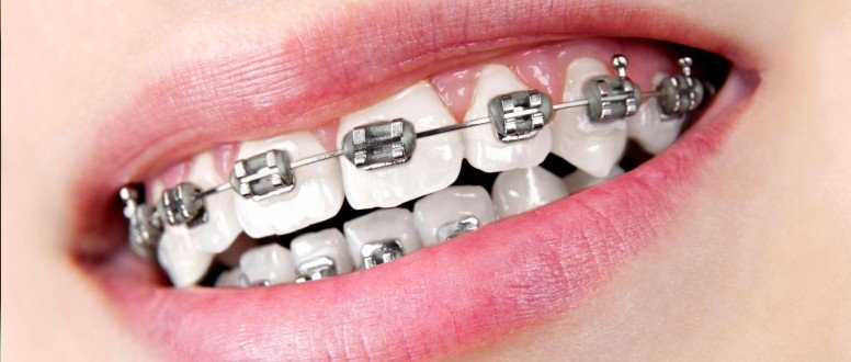 تقويم الاسنان المعدني