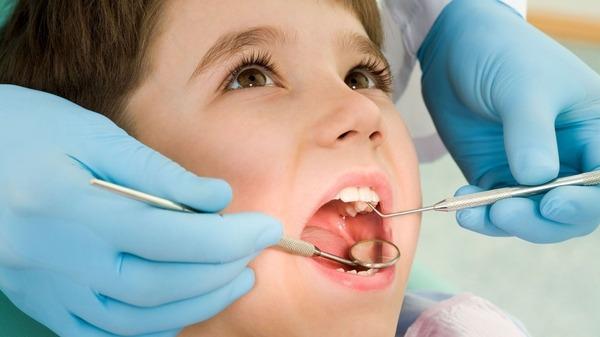 عرض الحشوة الوقائية لأسنان الأطفال