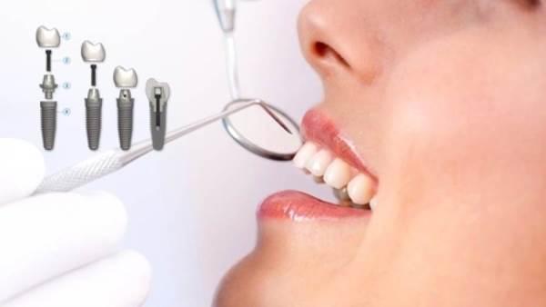 زراعة اسنان