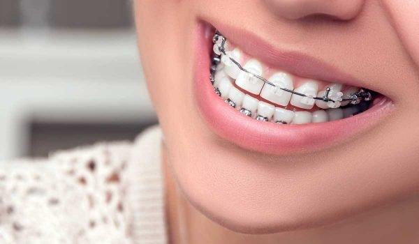 تقويم الاسنان مع تنظيف الاسنان