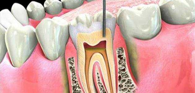 علاج جذور الاسنان ( علاج العصب )