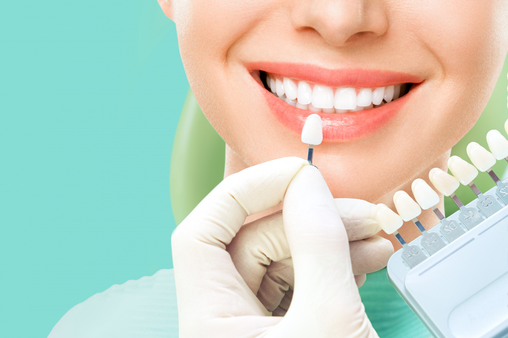 تركيبة الاسنان الزيركون