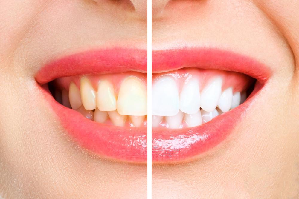 تبيض الأسنان + التنظيف و تلميع مجاني