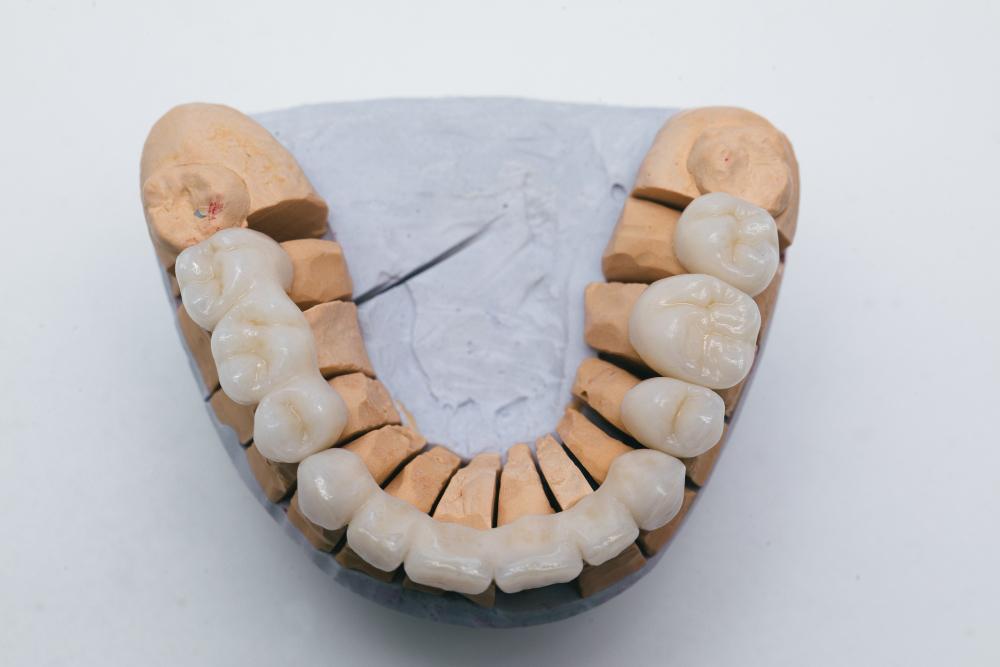 تركيبة اسنان بورسلين