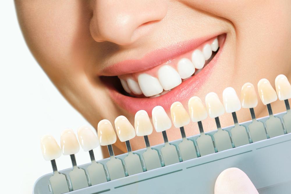 تركيبة الأسنان الزيركون