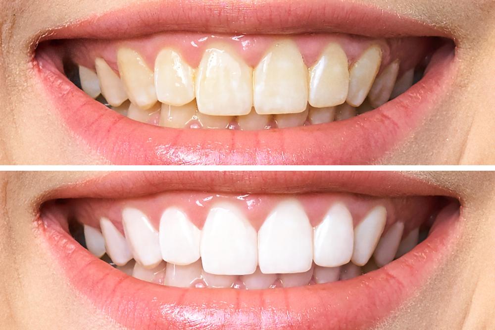 تنظيف و تلميع الأسنان