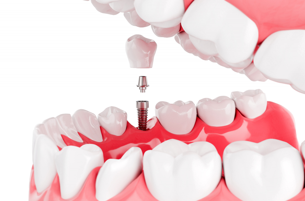 زراعة الأسنان