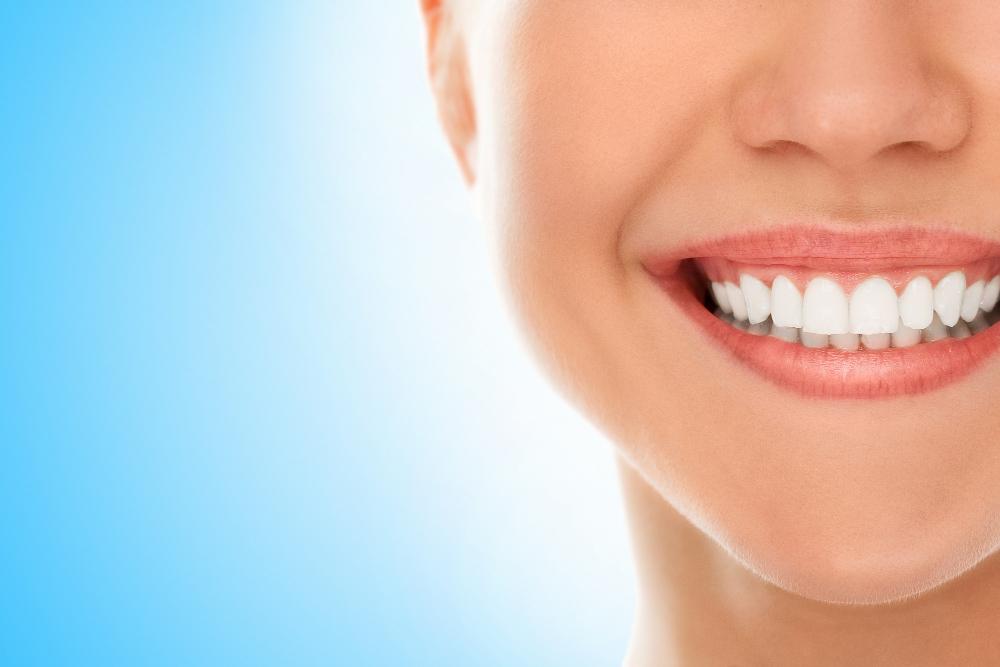 تنظيف و تلميع الاسنان