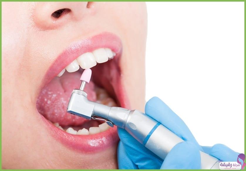 تنظيف جير الأسنان
