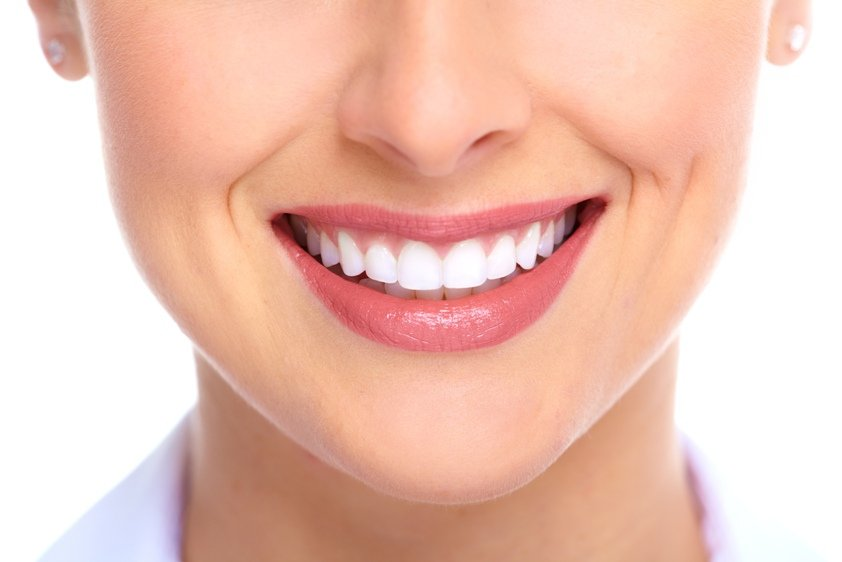 تنظيف اسنان مع التلميع