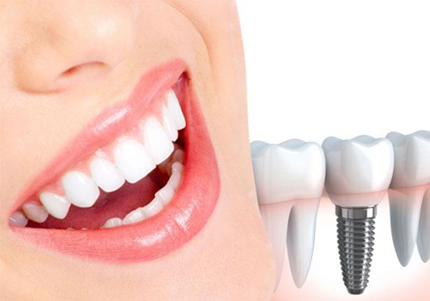 زراعة الاسنان مع التركيب
