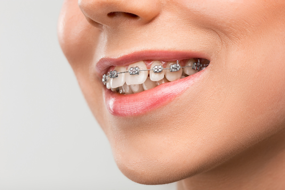 تقويم الأسنان المعدني