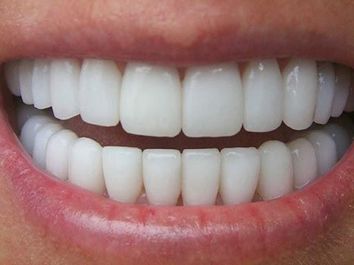 تركيبات اسنان الزريكون